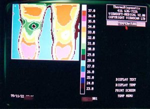 Thermotex leg thermography 1