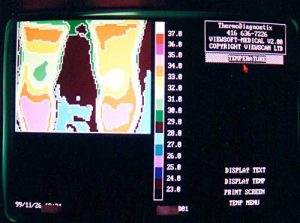 Thermotex leg thermography 3